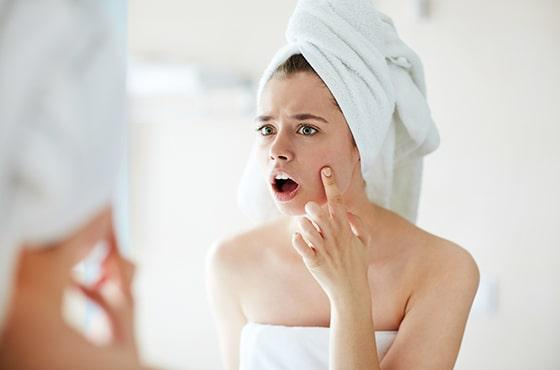 Adapt your beauty regime and overcome acne!